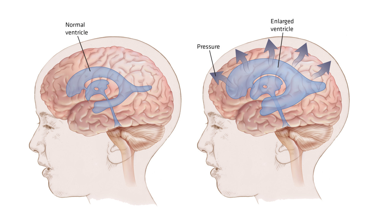 Hydrocephalus on blood flow of brain